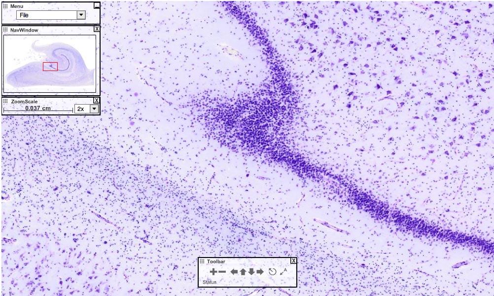 Hippocampus - Virtuelles Präparat - zoombar - Universität des Saarlandes, Prof. Bock